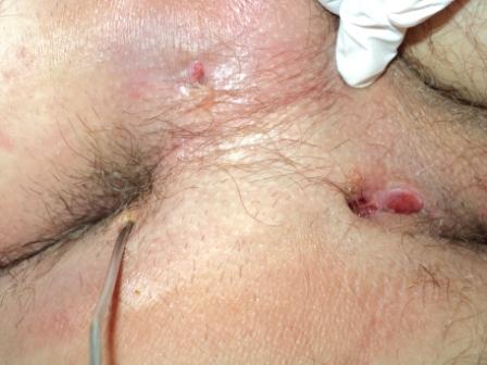 condilomatoza anala)