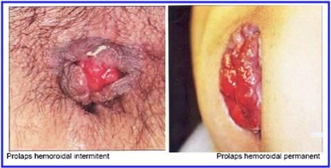 Tratamentul fracturii la umar ?i reabilitarea