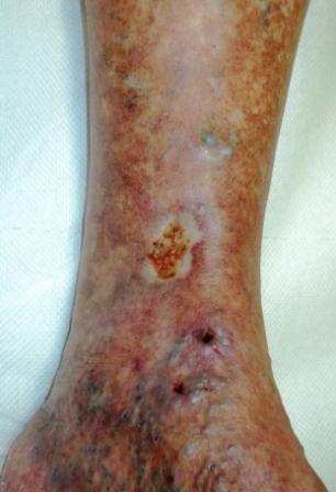 tratamentul ulcerului în varicoză