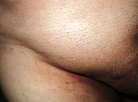 dureri abdominale inferioare mai mici in timpul sarcinii